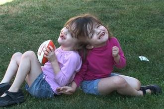 頭蓋結合双生児
